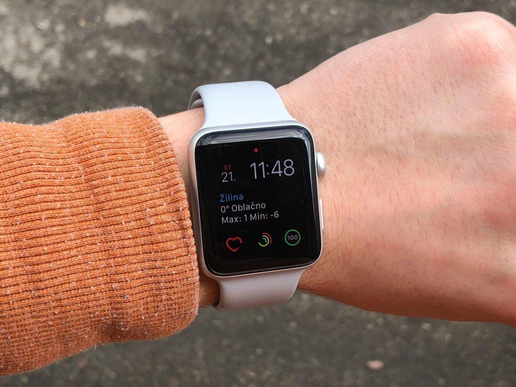 Pri používaní škrabance nijako neovplyvnia používanie Apple Watch. Nevyzerajú ale príliš reprezentatívne. Nie na hodinkách za 400 eur - svetapple.sk
